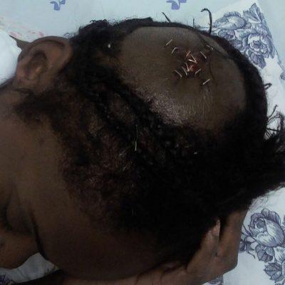 Una camerunesa saltó por una ventana para huir de un violento asalto a mano armada de dos hombres